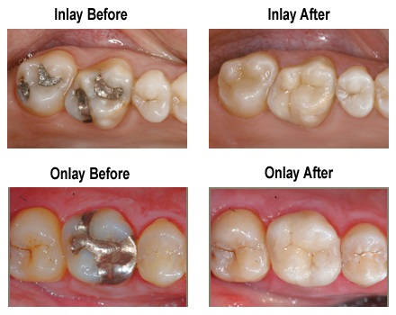 Cerec - Before and After photos